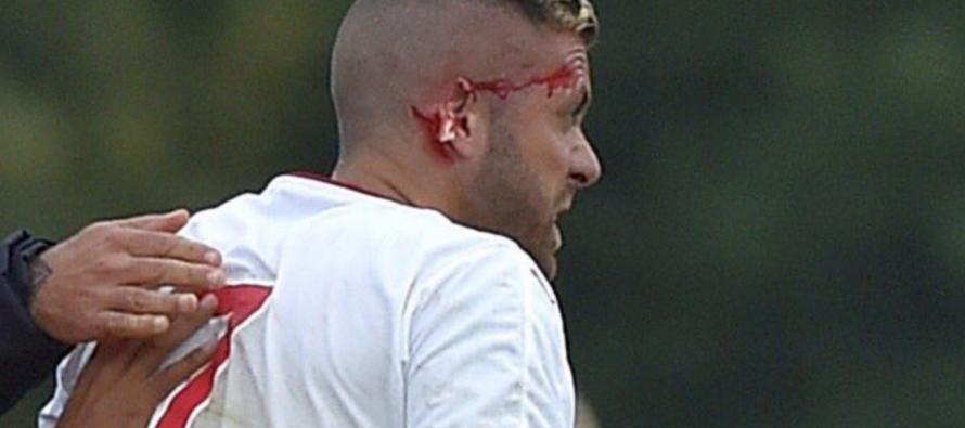 Foot – Ligue 1 : Quand le gabonais Didier Ndong coupe l'oreille de Jeremy Menez